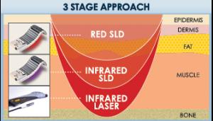BioFlex 3 Stage Approach